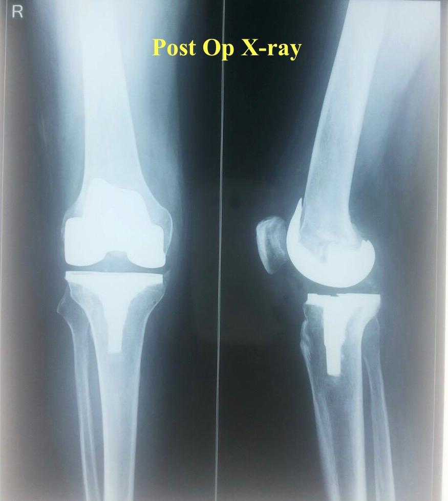 Joint Replacement Surgeon in Aurangabad